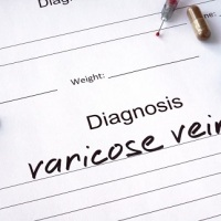 Tips For Anyone That Suffers From Varicose Veins