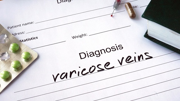 varicose veins, tips, weight loss, eat right, exercise, sleep posture, posture, health